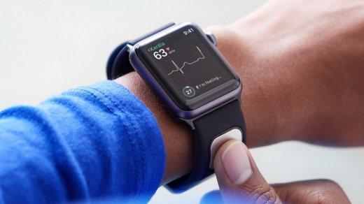 AliveCor KardiaBand — первый медицинский аксессуар для Apple Watch