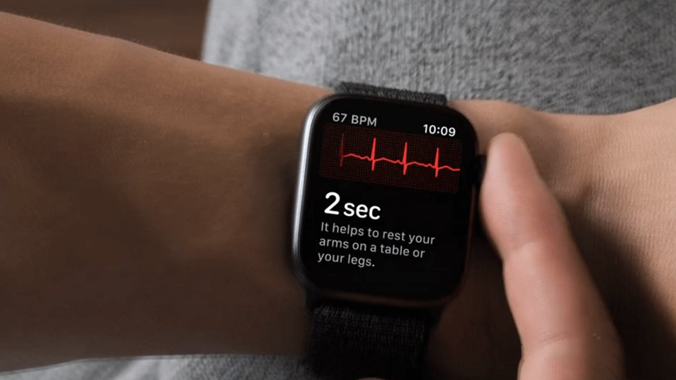 ЭКГ вApple Watch: доверять или нет? Ученые ответили
