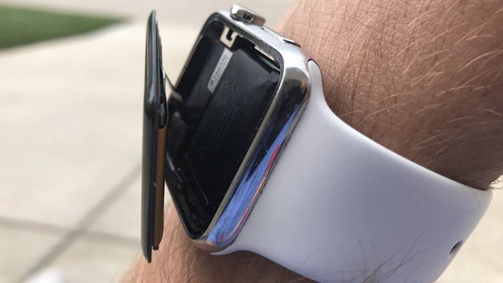 Apple обвинили всокрытии опасного дефекта Apple Watch