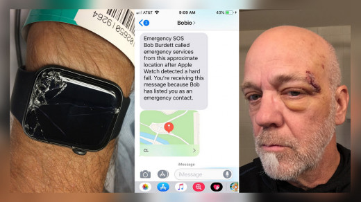 Apple Watch спасли жизнь мужчине
